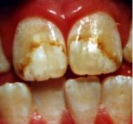 fluorosis-dental